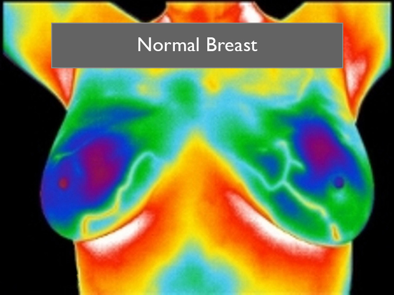 How Does ThermaVUE®Medical Thermal Imaging Work?
